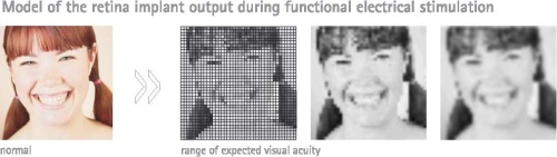 visual acuity