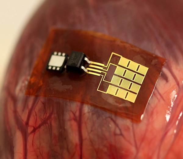Thin, flexible mechanical energy harvester, with rectifier and microbattery, mounted on the bovine heart. Courtesy University of Illinois/University of Arizona.